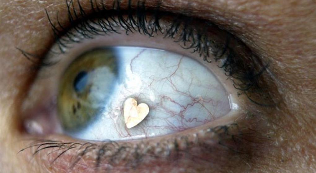 Implante de joyas en los ojos, una tendencia que causa polémica