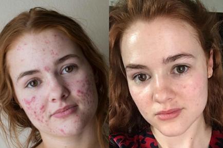Selfies con acné, la última moda en redes sociales