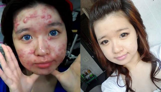 maquillaje antes y despues acne